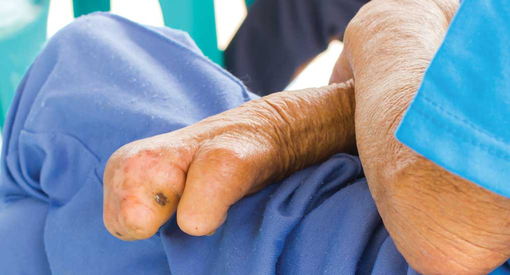 Stigma biggest barrier to ending leprosy: WHO