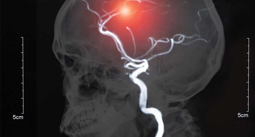 EAP for AI tech to detect haemorrhage