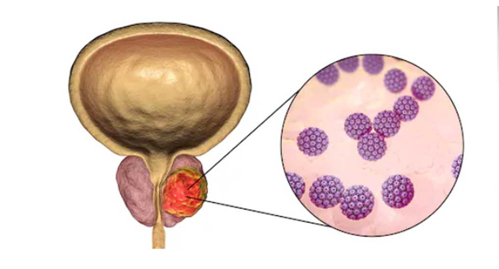 Melbourne Study links prostate tumours with fatty acids uptake by cancer cells