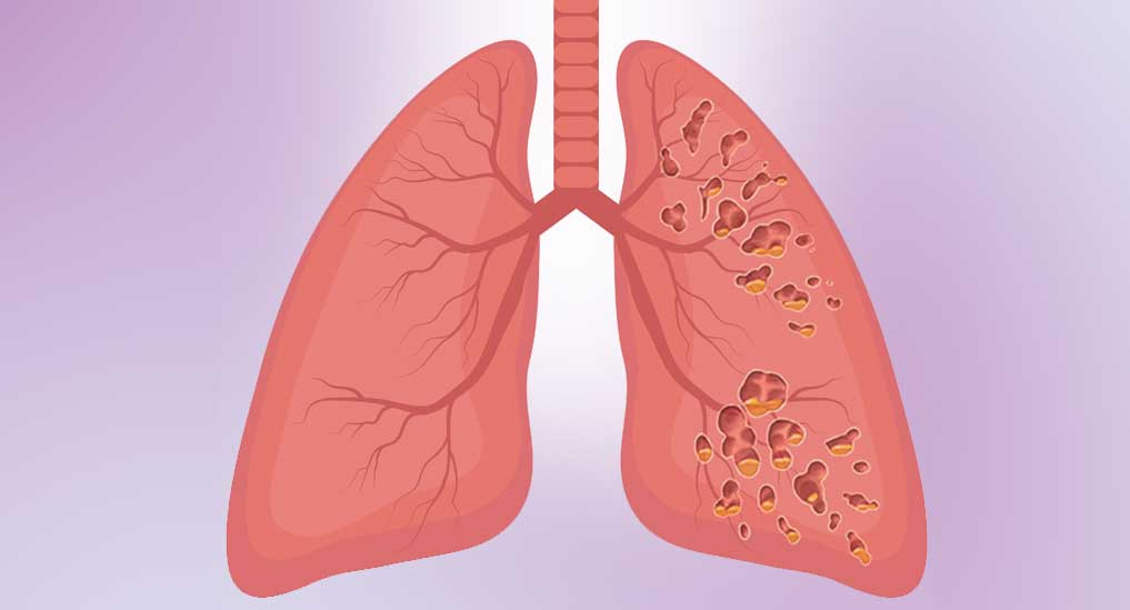 Impaired clearance of mucin linked to lung fibrosis