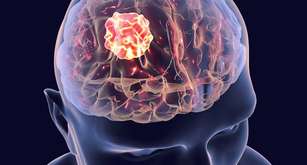 Carboplatin-everolimus combo could help fight paediatric glioma