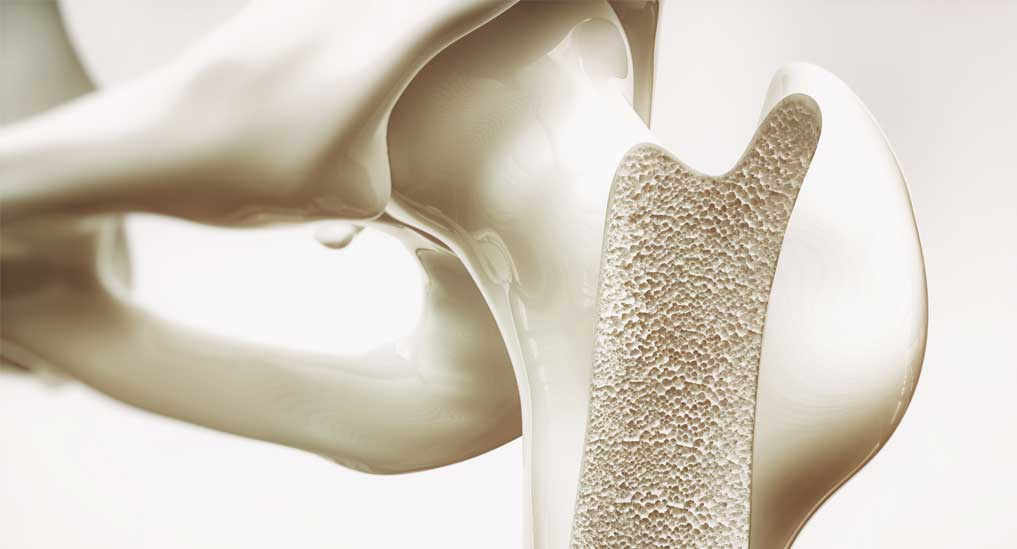 Bone loss  treatment device gets approvals
