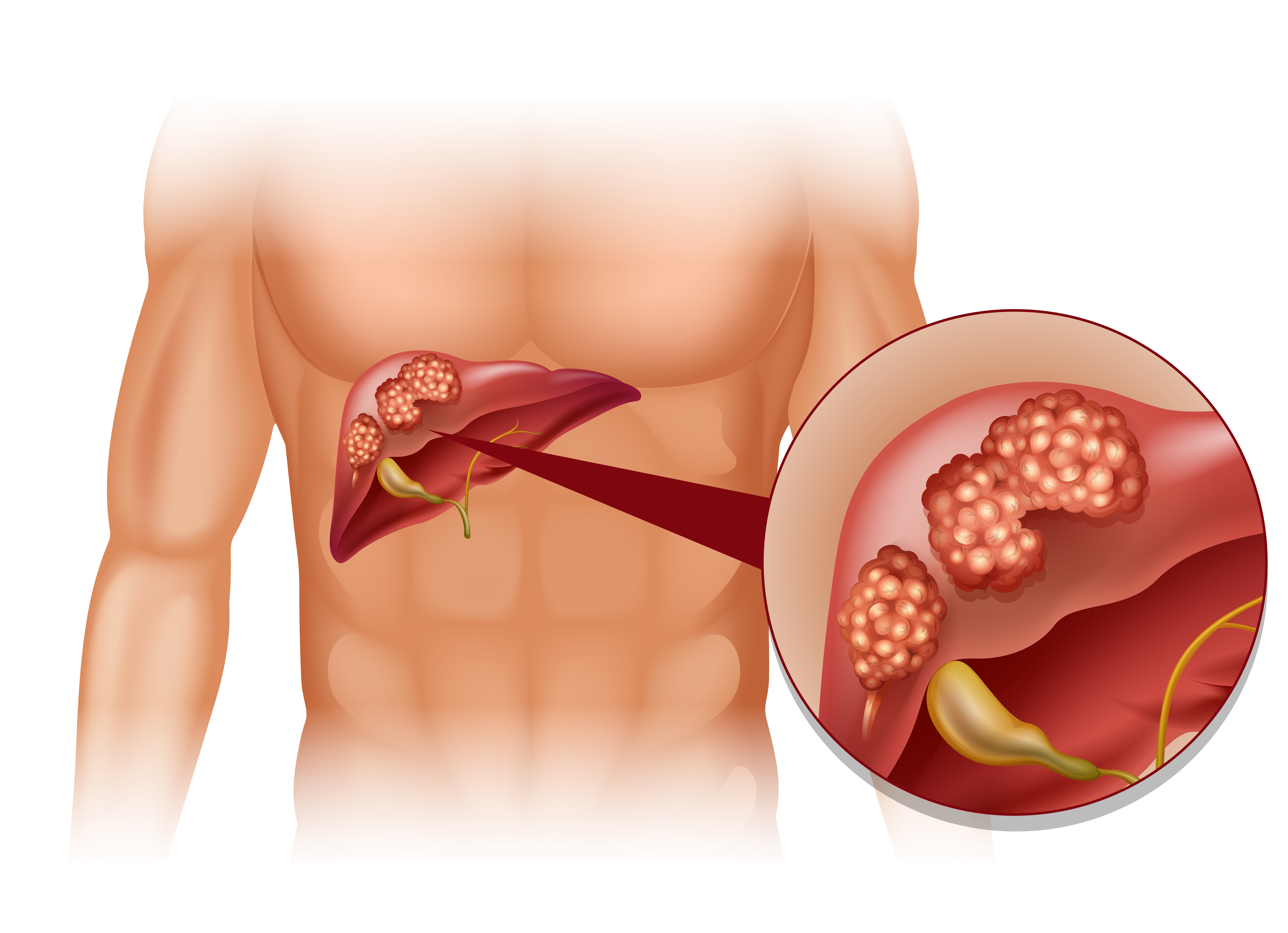 Studyexplains why males are more prone to liver cancers