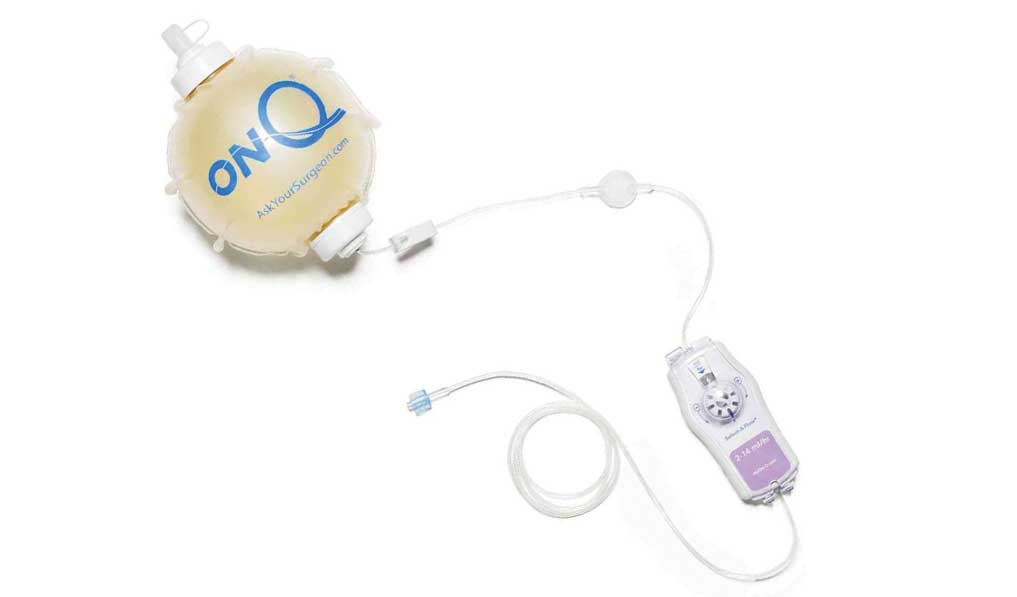 501k clearance for pain drug delivery device