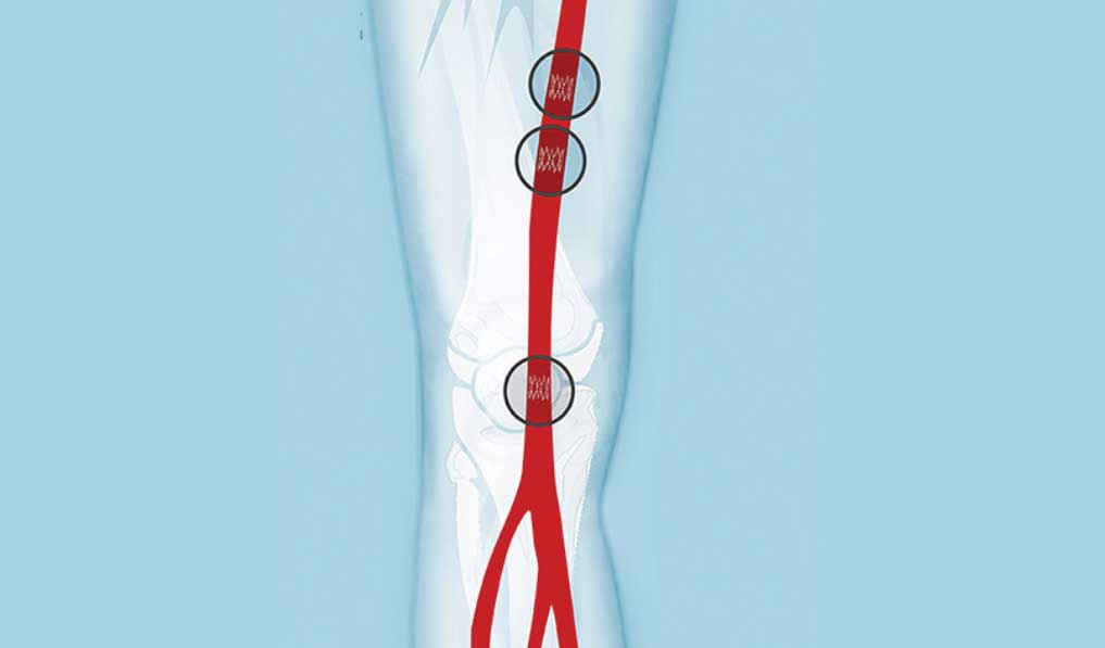 Tack endovascular system for PAD gets US FDA approval