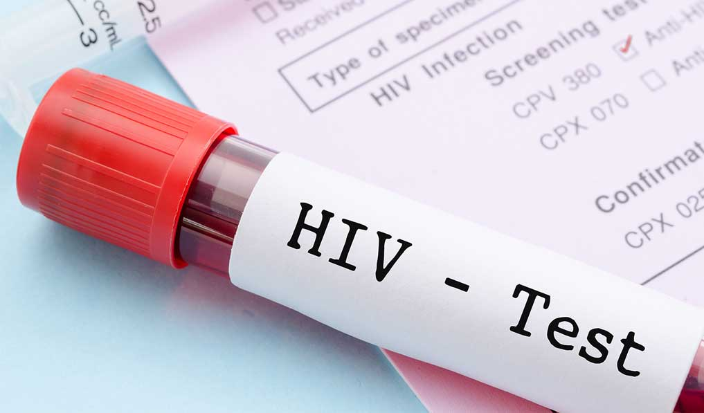 "Universal ""test and treat"" approach can cut down HIV"
