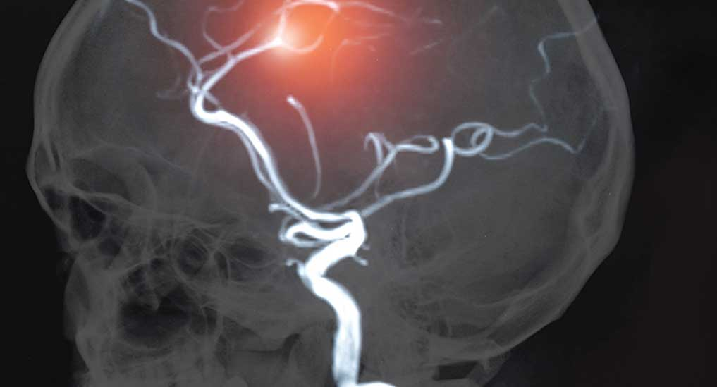 Electrical stimulation of collateral flow promising in acute stroke