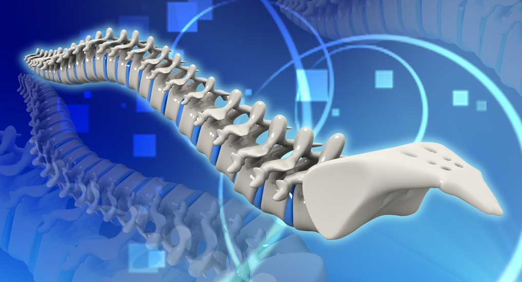ASSI launches screening program for spine deformity in children