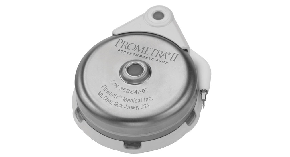 Prometra II 40 ml intrathecal  pump receives FDA approval