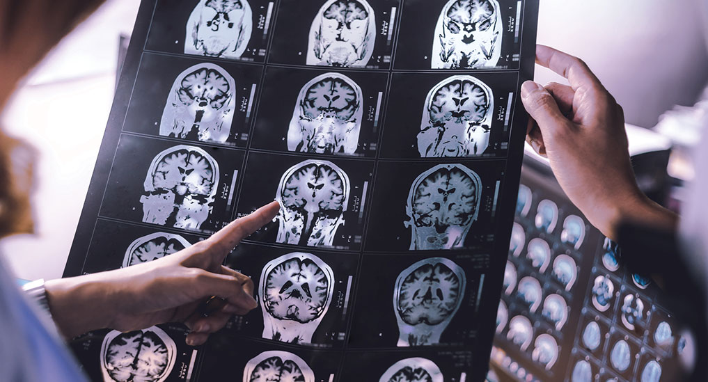 Dementia spreads along  connectional pathways