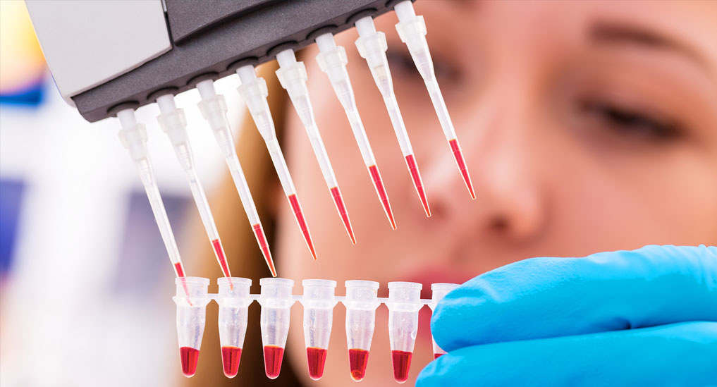 Supreme Court directs free testing; Private labs looking forward to government aid