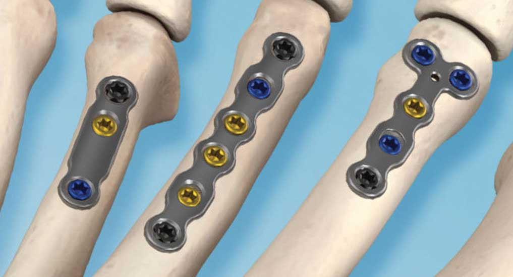 In2Bones introduces  compression plating system