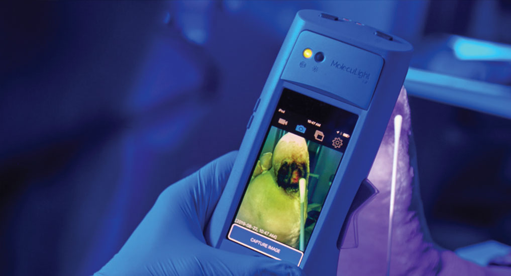 US FDA clears i:X handheld wound imaging device