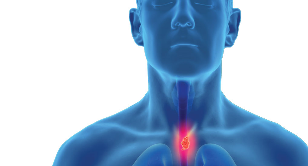 FDA places Biostage's oesophagus implant on hold