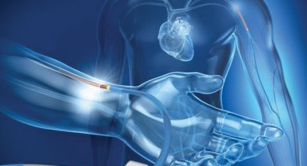 Cordis to launch sheathless cardiac access system in India