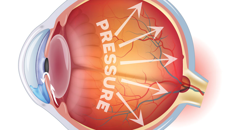 FDA clears bimatoprost implant for glaucoma