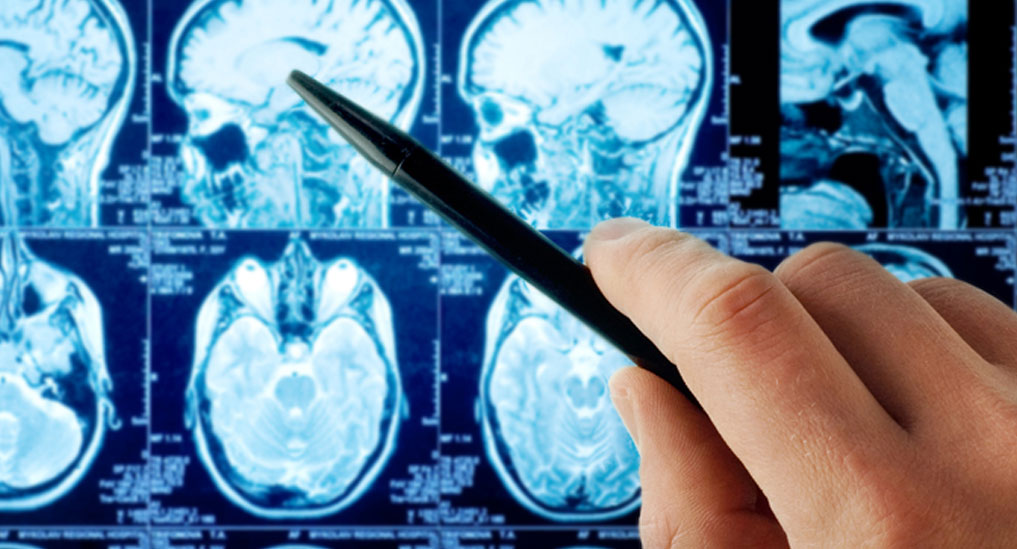 Antibody treatment helps preventing long-term effects of traumatic brain injury: Gladstone Institute study