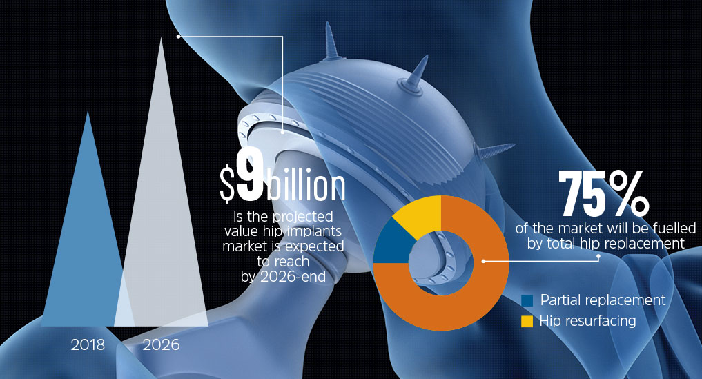 DEMAND FOR HIP IMPLANTS GOES UP