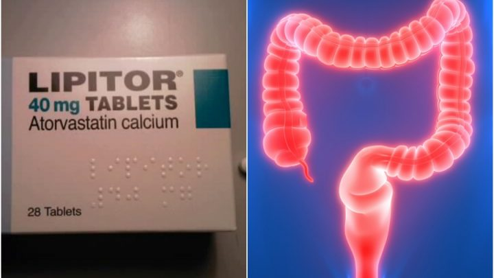 Statins could be effective for treating ulcerative colitis patients